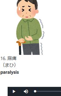 症状_麻痺のイメージ